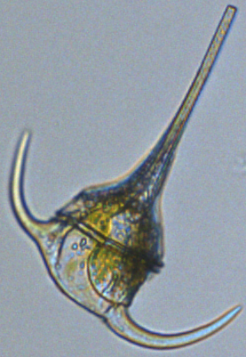 Ceratium (a type of plankton)